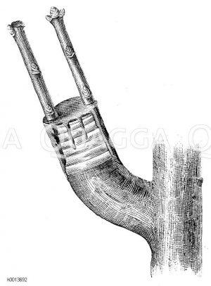 Spaltpfropfen an den abgeschtützten Ästen älterer Bäume Zeichnung/Illustration