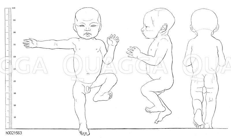 Proportionen eines neugeborenen Kindes (nach Schwadow) Zeichnung/Illustration