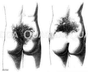 Kreuzbeinbehaarung Zeichnung/Illustration