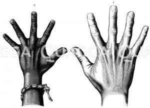 Hand. Schwimmhäute an der Menschenhand. Links: Hand einer Afrikanerin