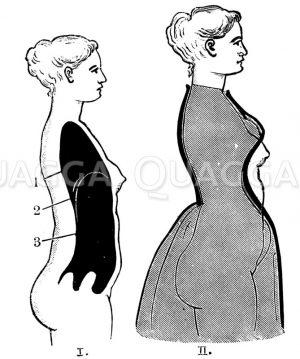 I. Weiblicher Körper ohne Korsett. II. Formveränderung durch das Korsett Zeichnung/Illustration