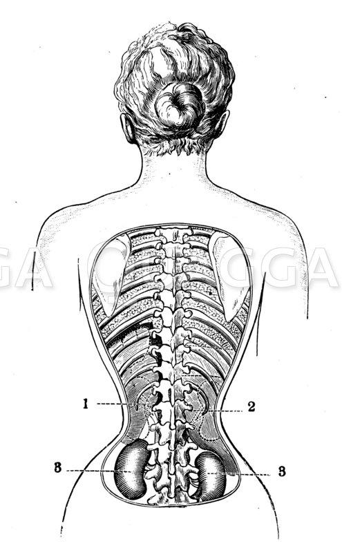 Gesenkte Niere infolge starken Schnürens Zeichnung/Illustration