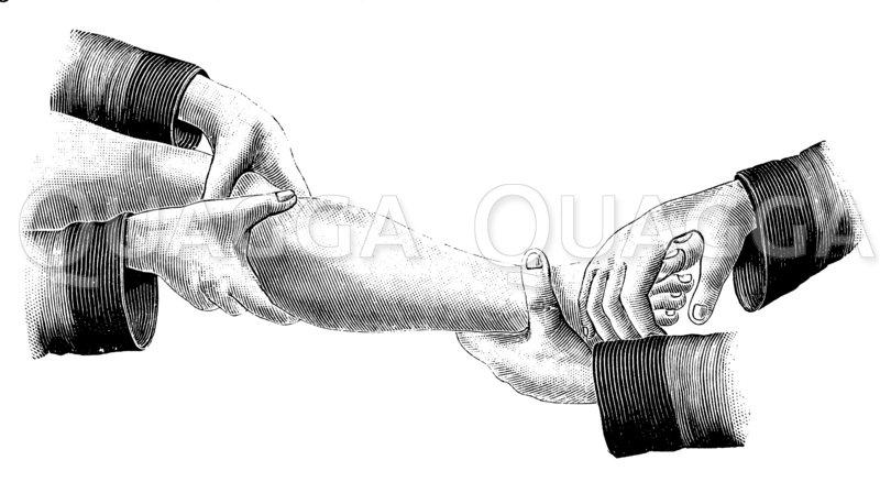 Einrichtung eines verrenkten Fußes Zeichnung/Illustration