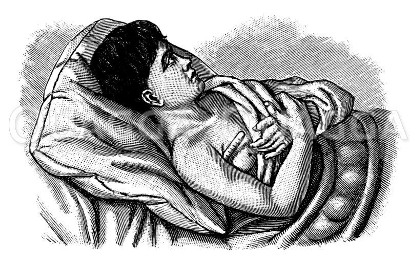 Temperaturmessung in der Achselhöhle Zeichnung/Illustration