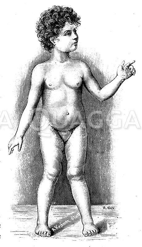 X-Beine bei einem vierjährigen Mädchen Zeichnung/Illustration