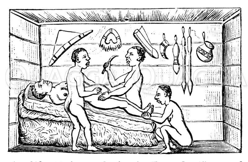 Kaiserschnitt in Uganda (Zentral Afrika). Nach Felkin. Zeichnung/Illustration