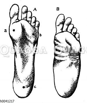 Wohlgebauter Fuß und Plattfuß