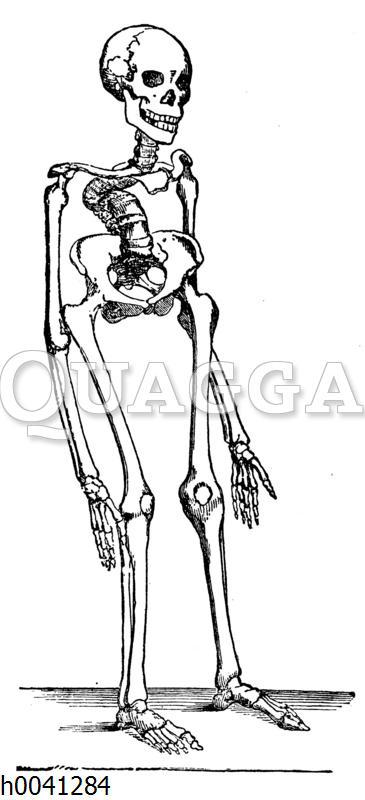 Skelett eines Rachitis-Kranken (Kyphose)