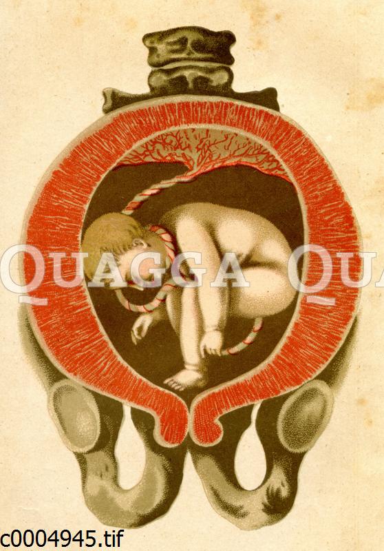 Lage eines Fötus in der Gebärmutter
