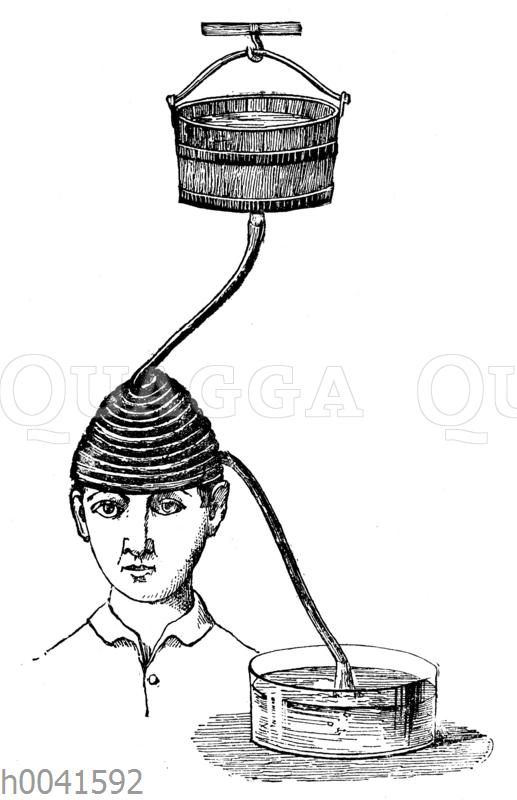 Kaltwasserbehandlung bei chronischem Kopfschmerz