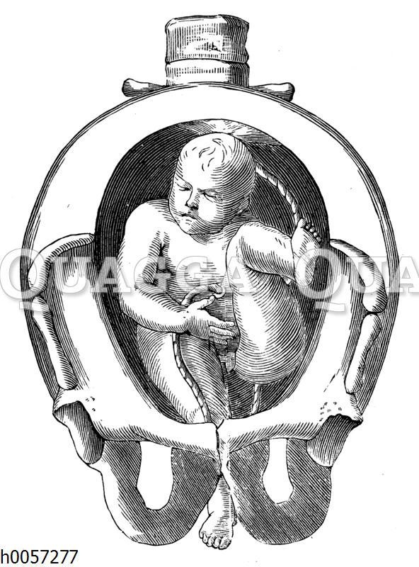 Lage eines Kindes in der Gebärmutter