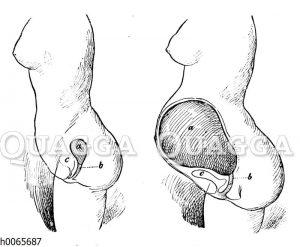 Lage der Gebärmutter in einer nicht-schwangeren (links) und einer schwangeren (rechts) Frau