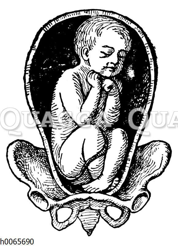 Lage eines Kindes in der Gebärmutter: Steißlage