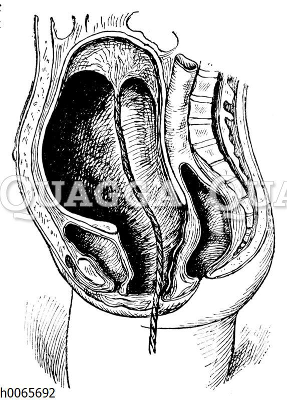 Gebärmutter unmittelbar nach der Geburt