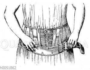 Leibbinde gegen Hängebauch