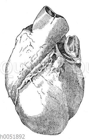 Herzschwielen bei chronischer Herzmuskelentzündung