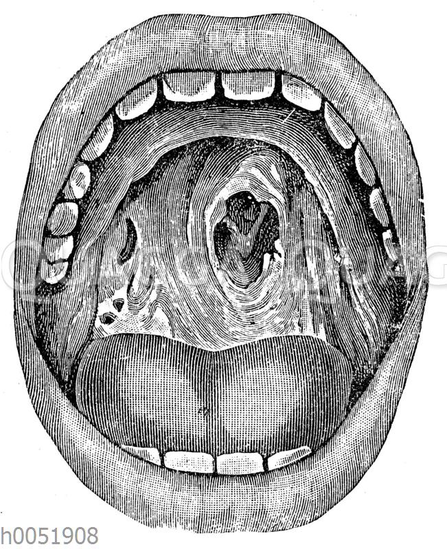 Syphilis: Durchlöcherung des harten Gaumens