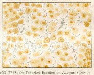 Kochs Tuberkel-Bazillen im Auswurf