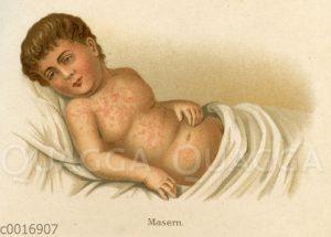 Hautbild bei Masern zu Beginn der Krankheit