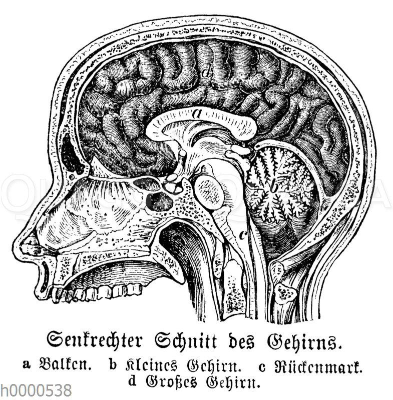 Schnitt durch menschliches Gehirn