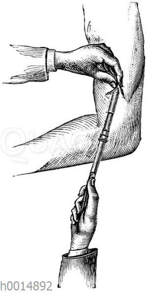 Morphiumeinspritzung unter die Haut mit der Leiterschen Patentspritze