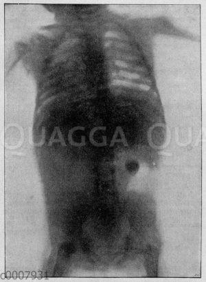 Röntgenaufnahme des Brustkorbs eines Kindes