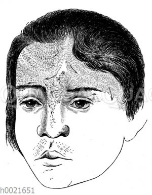 Kopf eines Mädchens mit behaarter Stirn