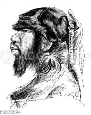 Porträt der an Hypertrichose leidenden Julia Pastrana