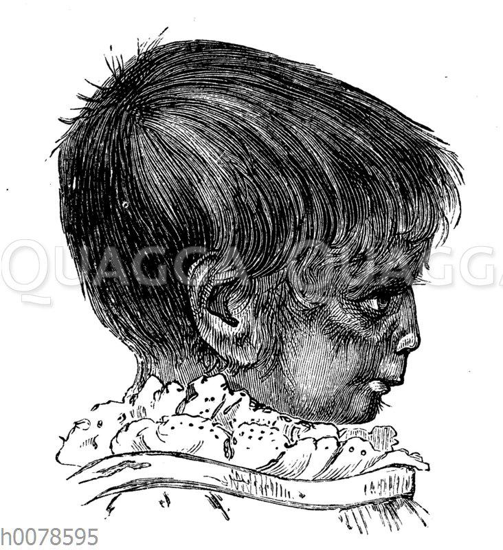 Porträt des ebenfalls an Hypertrichose leidenden Kindes der Julia Pastrana