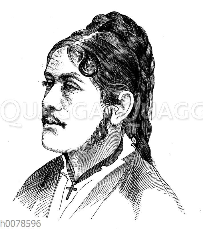 Porträt eines Mädchens mit leichter Überhaarung (Hypertrichose)