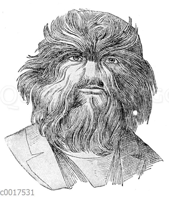 Der russische 'Haarmensch'