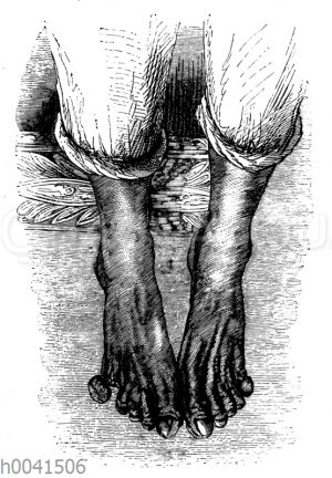 Gangrän der Füße