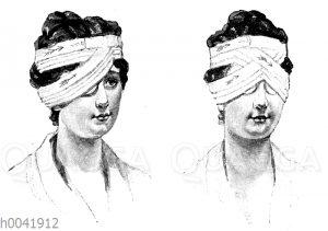 Einfacher und doppelter Verband des Auges