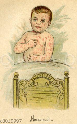 Kind mit durch Nesselsucht verursachten Hautausschlag